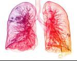 7 عادت آسیب رسان به ریه ها