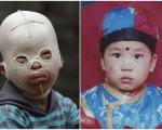 پسر بچه ای که صورت ندارد! +تصاویر