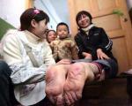 زندگی عجیب زنی با پاهای برعکس +عکس