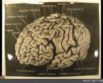 تفاوت مغز «اینشتین» با سایر مردم در تصاویر تازه کشف شده