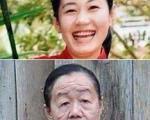 زن ۲۳ ساله که 50 سال پیر شد + تصویر