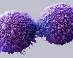 علائمی درباره سرطان که نباید نادیده گرفته شود