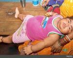 کودکی که در 2 سالگی مرد شد! +عکس
