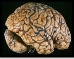 سوء تغذیه در كودكی، كاركرد مغز را تضعیف می كند