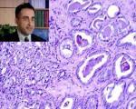 کشف شایعترین علت مرگ نجاتیافتگان از سرطان پروستات توسط دانشمند ایرانی
