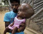 دختری مبتلا به عجیب ترین بیماری قرن +تصاویر