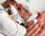 تولد نوزادی به اندازه یك مشت
