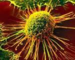 چرا سرطان در ایران زیاد شده است؟
