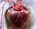 کمبود شدید داروهای حیاتی بیماران قلبی