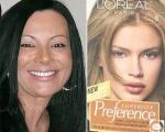 حساسیت به رنگ مو جان یک زن 38 ساله را گرفت +عکس