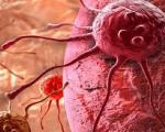 هشدار درباره یکی از ده سرطان شایع در دنیا