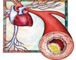 باورهای غلط درباره کلسترول