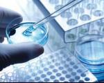 افزایش سرعت و دقت اندازهگیری ویروس هپاتیت B با «ایمنحسگر» محققان کشور