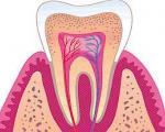 دندان و لثه زیر ذرهبین