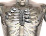 ساخت دنده و جناغ سینه یک بیمار سرطانی با پرینتر سهبعدی