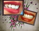 رنگ  بد دندان ها نشانه چیست؟!!