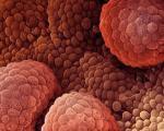نویدی تازه برای درمان سرطان پوست