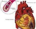 حملات قلبی در ساعات 1 و 5 بامداد صورت می گیرد
