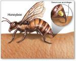 ١٠ روش طبیعی برای مقابله با نیش پشه