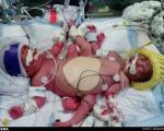 تولد سهقلوهای نادر در آمریکا +عکس