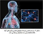 اختلالات جنسی در خانمهای مبتلا به ام اس (ms)