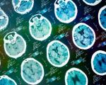 روش جدید افزایش درمان سکته مغزی