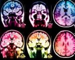 مغز افراد دارای دید مثبت چه شکلی است؟
