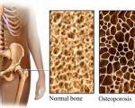 دانستنی هایی درباره پوکی استخوان