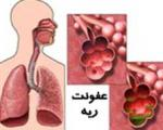 عفونت ریه و چند نمونه از بیماریهای آن
