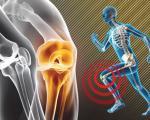 آرتروز ناشی از ورزش و راههای مقابله با آن