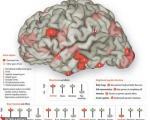 تصویر: مغز انسان در حالت عاشق بودن