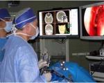 مضرات پرتودرمانی برای بیماران مبتلا به سرطان پروستات