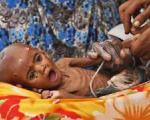 رویارویی یک میلیون سومالیایی گرسنه با خطر مرگ