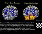 موفقیت نهایی دانشمندان در ژن درمانی نابینایان