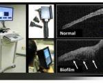 ساخت دستگاه جدید برای مشاهده عفونت پشت پرده گوش