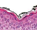 التهاب پوستی؛ از نیش دراكولا تا كهنه بچه