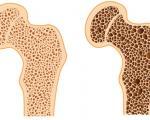 پوکی استخوان و عوامل ایجاد کننده آن