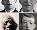 اولین جراحی پلاستیک تاریخ بشر +عکس