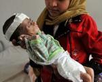 کودکان یمنی در معرض خطر مرگ +عکس