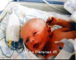بیماری نادر این کودک که نمی تواند عرق کند + عکس