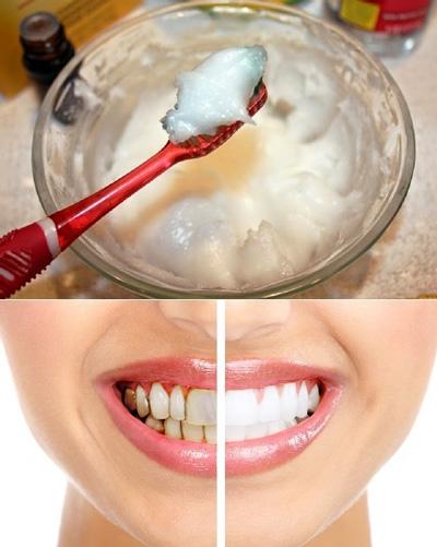 سفید کردن دندان, سفید کردن دندانها در خانه