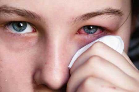 اگزما و حساسیت پوستی