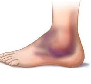 بیماری هموفیلی, درمان کبودی