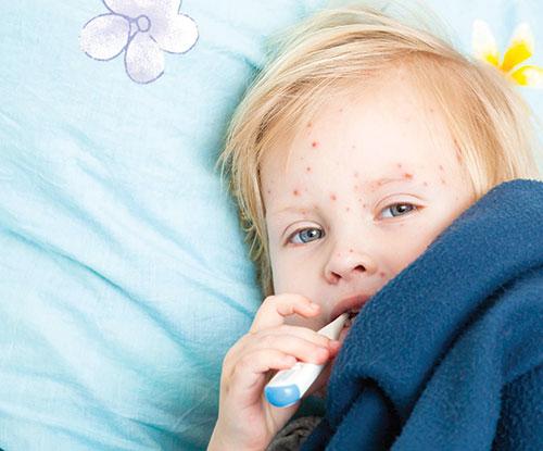 از بیماری مخملی چه میدانید؟