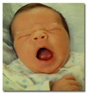 یرقان در نوزادان