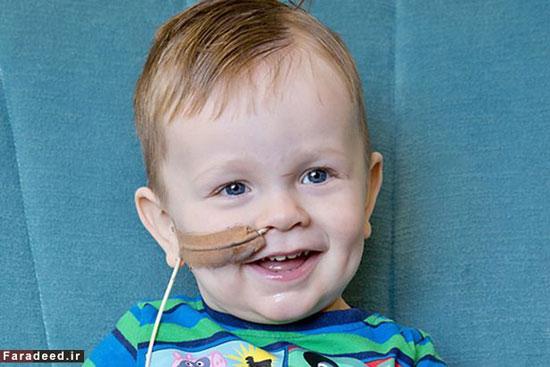 بیماری عجیب و نادر دو کودک!