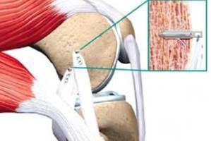 آرتروز,درمان آرتروز,راههای کاهش درد آرتروز,بهترین مسکن برای آرتروز