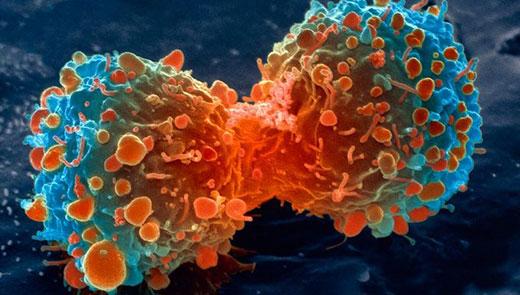 علائم هشدار دهنده سرطان که اغلب جدی نمی گیریم