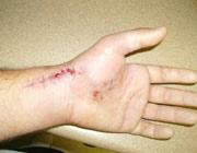 بهبود زخم