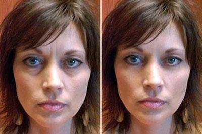 طب سوزنی,برطرف کردن گودی زیر چشم,برطرف کردن خط اخم,درمان با طب سوزنی